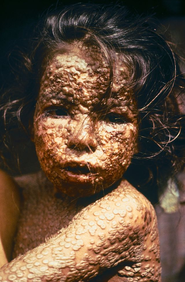 Child infected with smallpox which has now been eradicated by vaccinations