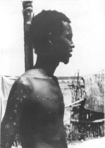 Image of Ali Maow Maalin, the last person to be infected with smallpox.