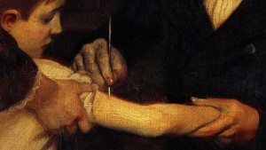 Edward Jenner checking to see if James Phipps was immune to smallpox after receiving the cowpox inoculation.