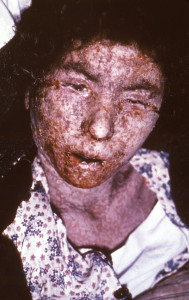 Italian female with late stage smallpox in 1965